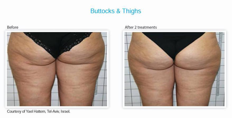 Buttocks & Thighs Treatment