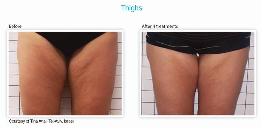 Thighs Treatment