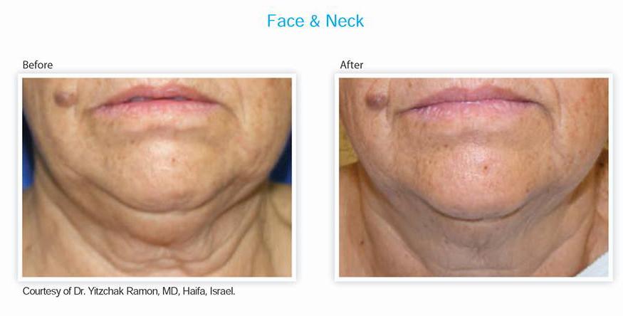 Face & Neck Treatment